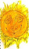 Sunburned1