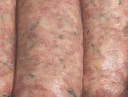 Skin_disease