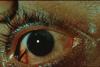 Eyeneedle